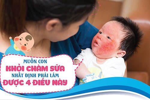 4 điều mẹ cần lưu ý nếu muốn điều trị khỏi chàm sữa ở trẻ sơ sinh và trẻ nhỏ