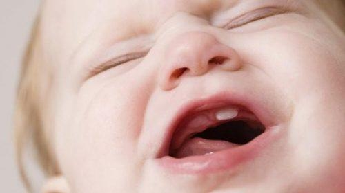 Mọc răng làm trẻ cáu ghắt, quấy khóc không ngừng
