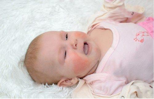 Bé từ 0 - 24 tháng tuổi dễ mắc chàm sữa.