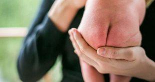 Vệ sinh không thường xuyên hoặc không đúng cách là một trong những nguyên nhân gây hăm tã