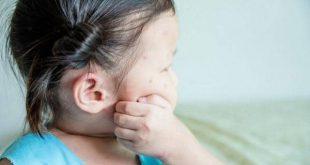 Các yếu tố gây dị ứng bên ngoài môi trường là Nguyên nhân khiến trẻ chàm sữa bị ngứa
