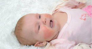 Bệnh chàm sữa ở trẻ em còn có thể lan sang các vị trí khác