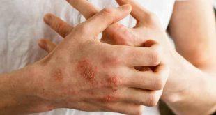 Chế độ dinh dưỡng có ảnh hưởng trực tiếp đến bệnh viêm da cơ địa