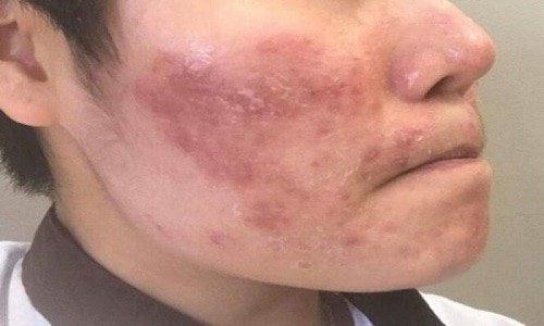 Hình ảnh viêm da cơ địa ở mặt