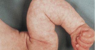 Hình ảnh da trẻ sơ sinh nổi bông sữa (ảnh minh họa)
